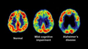 3-2-1-Go to Sleep! Here's Why... (Part 2), picture of phases of brain in cognitive decline