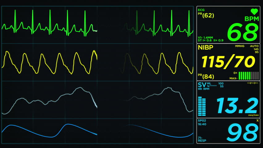 Heart Rate Readouts, important information for heart health